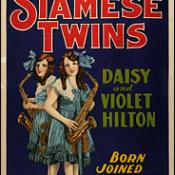 "The 1930s movie ""Freaks"" was the first to tell the story of conjoined twins Daisy and Violet Hilton."